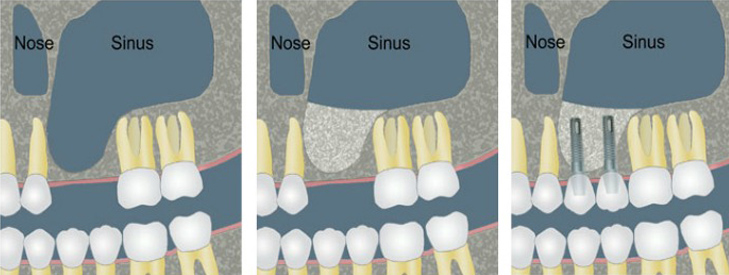 Sinus Floor Elevation And Implant Placement : Sinus lift mediana dental